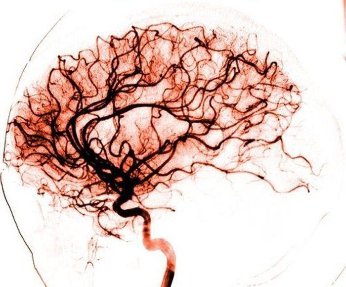 angiografia-cerebrale