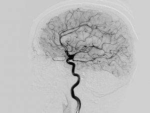 آنژیوگرافی مغز