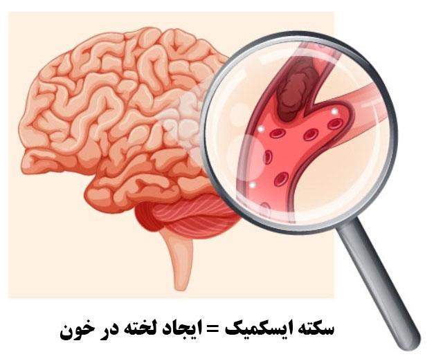 سکته خفیف مغزی
