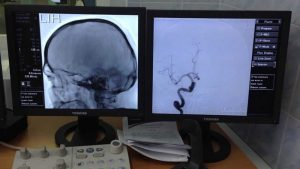 مراحل آنژیوگرافی مغزی