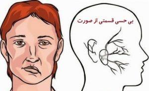 عوارض بعد از سکته مغزی