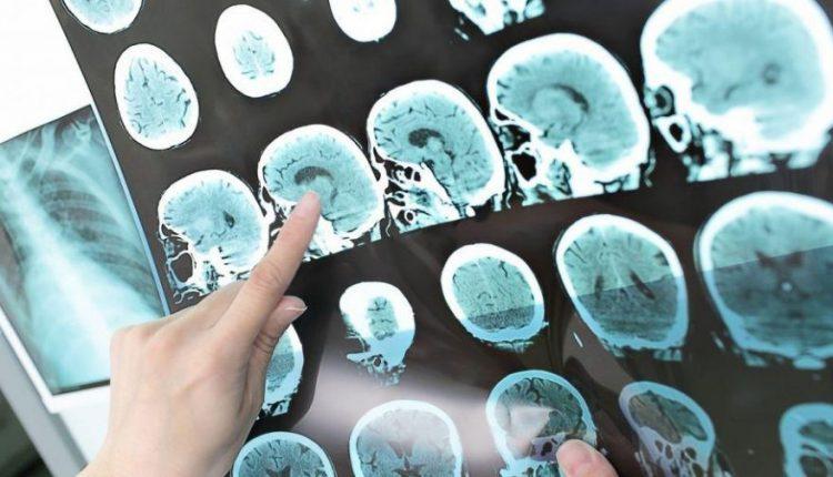 سکته مغزی هموراژیک