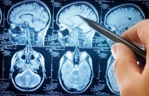 تومور مغزی خوش خیم و بدخیم