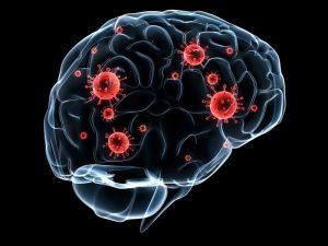 عفونت مغز