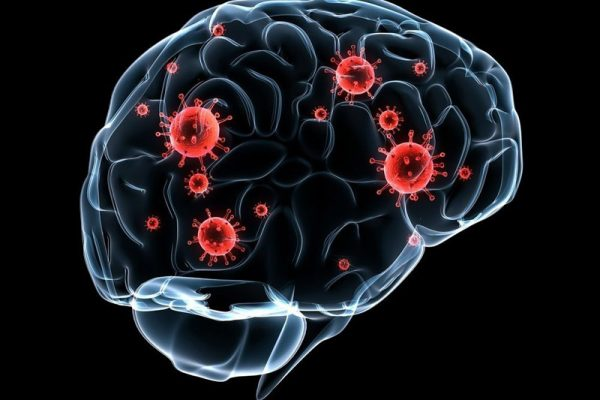 چه چیزی باعث عفونت مغز می شود؟
