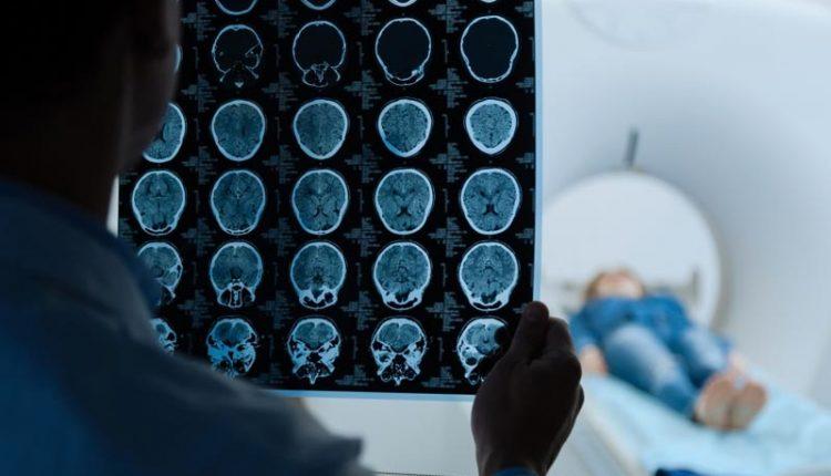 مراحل سرطان مغز
