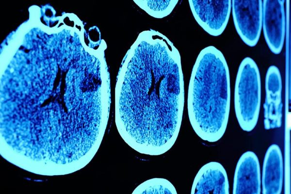 علائم و مراحل پیشرفت سرطان مغز