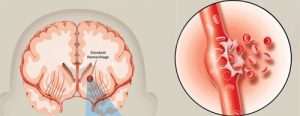 Mild stroke and treatment