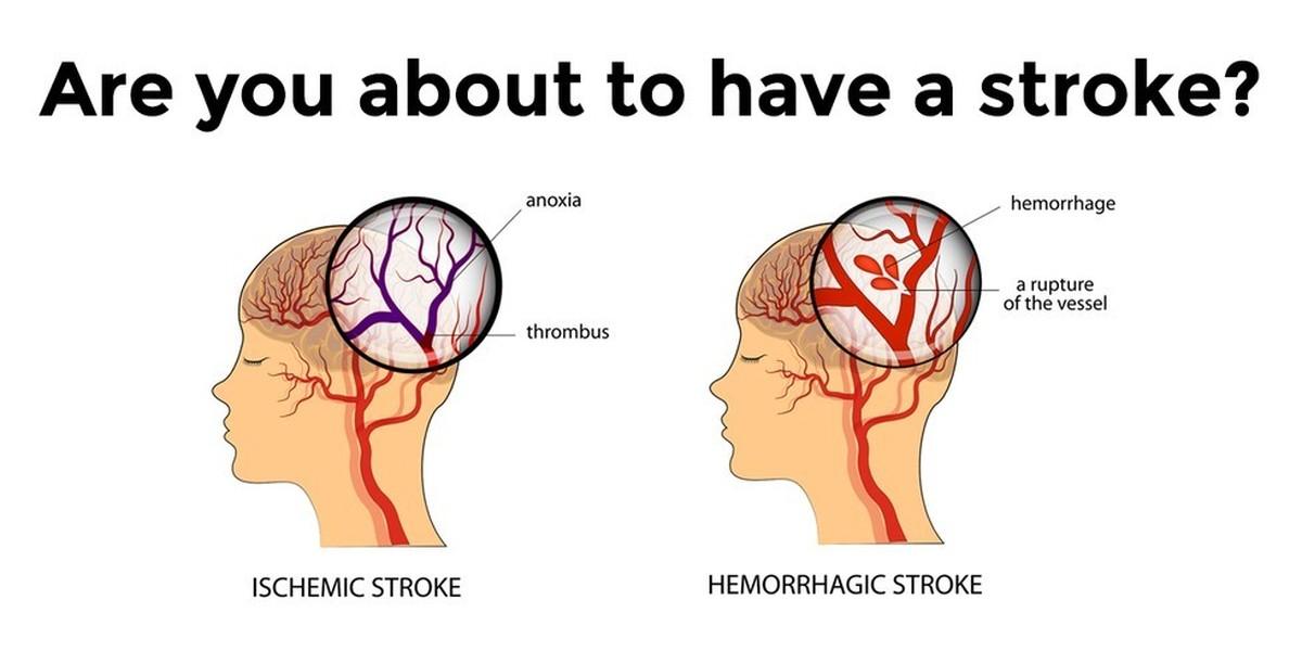 سکته مغز – علائم و نشانه ها ، درمان و پیشگیری