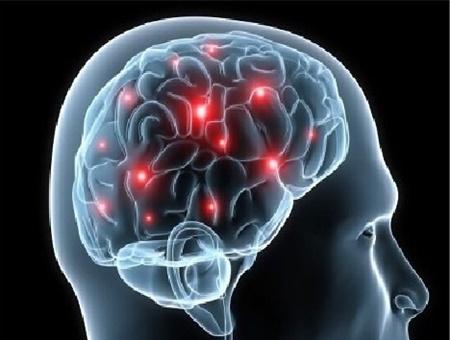 اقدامات اولیه در مورد بیماران سکته مغزی چیست، در موقع مواجه شدن با این بیماران چه کنیم