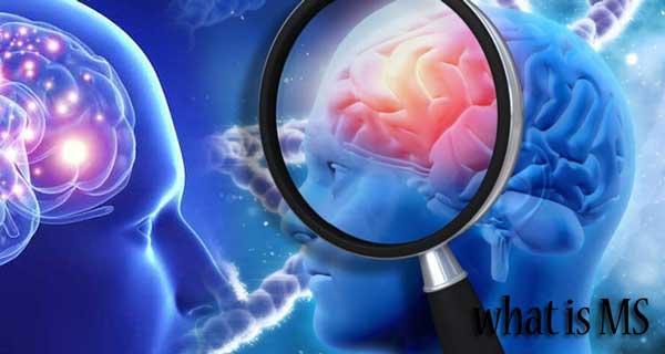 ام اس را بهتر بشناسید و علائم آن را بدانید، آیا MS یک بیماری خطرناک است؟