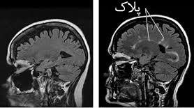 پلاک مغزی