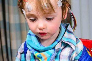 تشنج و صرع در اطفال