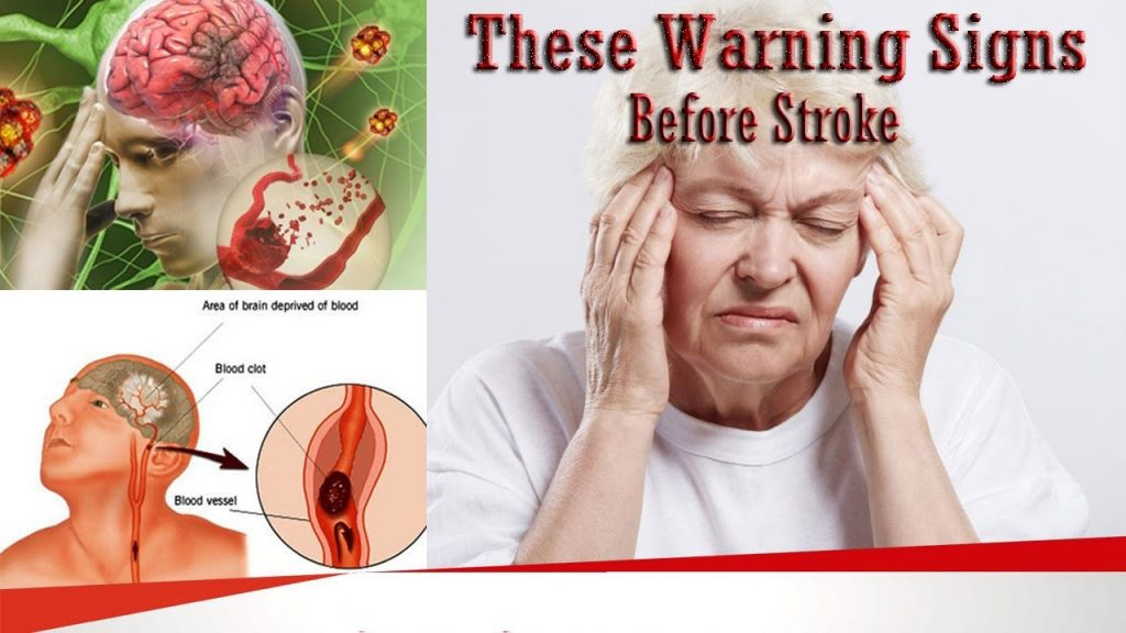 علائم قبل از سکته مغزی