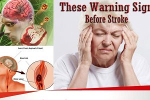 signs for stroke