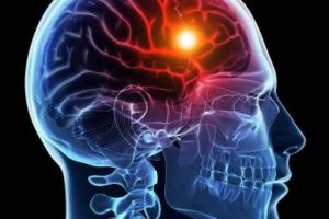 سکته مغزی و خونریزی هموراژ چطور ایجاد می شود