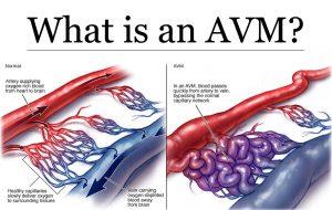 سکته مغزی هموراژیک در اثر AVM