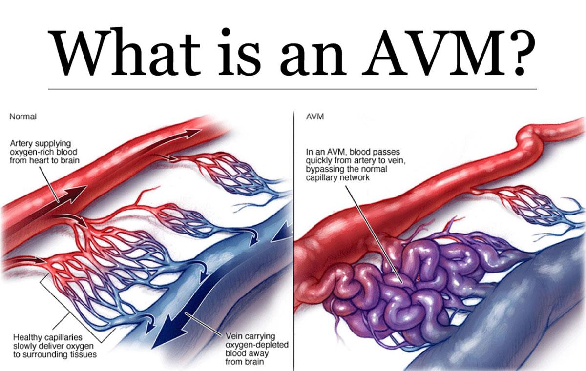 سکته هموراژیک در اثر AVM