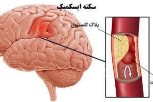 پارگی رگ مغز
