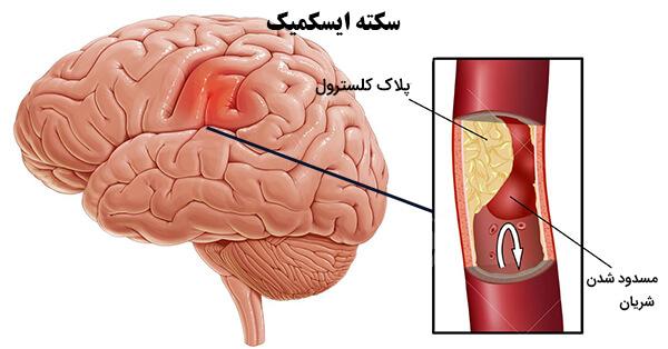 پارگی رک مغز