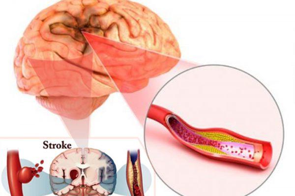 سکته مغزی شدید – از پیشگیری تا آخرین درمانهای سکته در دنیا ۲۰۱۹