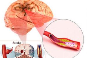 مراقبت از بیمار سکته مغزی