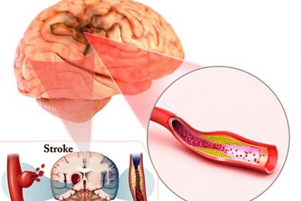 سکته مغزی شدید – از پیشگیری تا آخرین درمانهای سکته در دنیا 2019