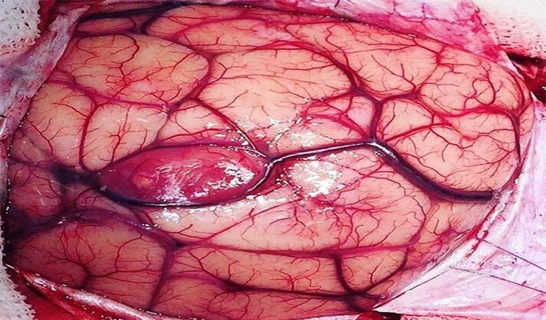 تومور خوش خیم مغزی
