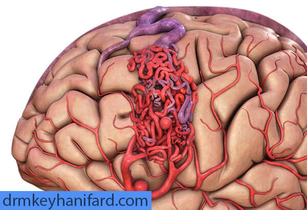 خونریزی مغزی و عوارض بعد از آن