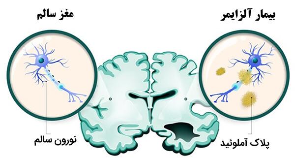 وضعیت نورونها در بیماری آلزایمر