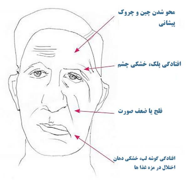 تشخیص فلج بلز چگونه است