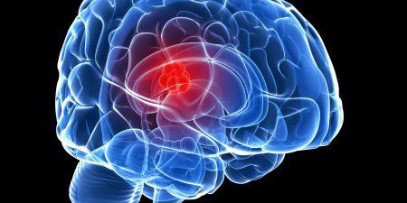 تیر کشیدن سر یکی از علائم تومور مغزی