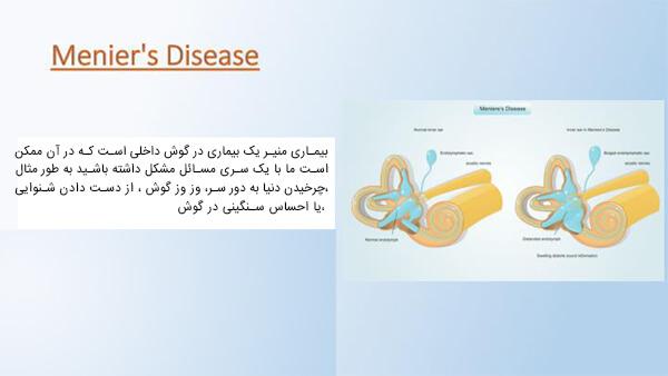 علائم بیماری منیر