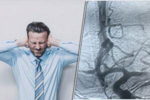 آیا سردرد صاعقه ای خطرناک است؟