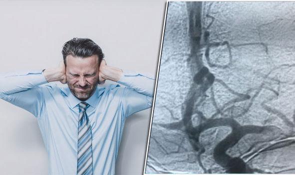 سردرد صاعقه ای| سردرد های تاندرکلاپ